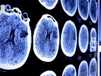 O Acidente Vascular Cerebral (AVC) é a segunda maior causa de morte no Ceará, perdendo apenas para a violência, em relação ao número de vítimas (Foto: Reprodução/ Internet)