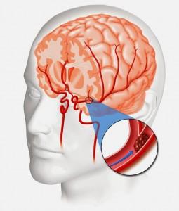 O AVC isquêmico é formado por uma interrupção no fluxo de sangue, em alguma região do cérebro, ocasionado por um coágulo (Foto: Reprodução/ Internet)
