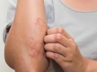 A doença, que afeta principalmente a pele e os nervos das extremidades do corpo, tem cura (Foto: Reprodução/ Internet)