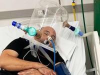 Segundo o médico Alberto Hil, a intubação não é um tratamento, mas sim um suporte enquanto outras medidas e, principalmente, a própria capacidade de recuperação do organismo estão atuando (Foto: Divulgação/Governo do Ceará)