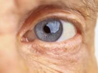 A principal causa de cegueira, no País, é a catarata (Foto: Reprodução/Internet)